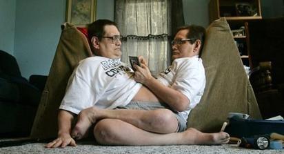 Ronnie e donnie galyon gemelli siamesi pi vecchi al - Gemelli diversi un altro ballo ...